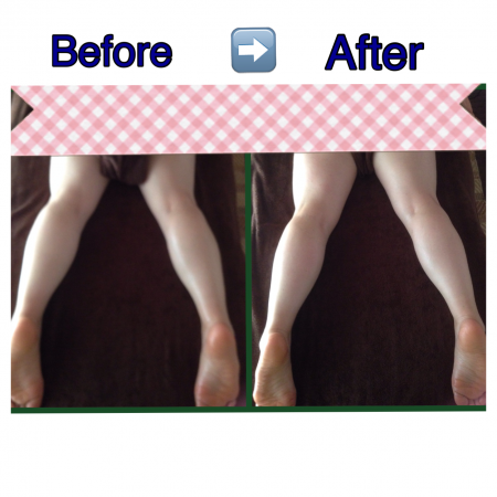足痩せ BEFORE AFTER